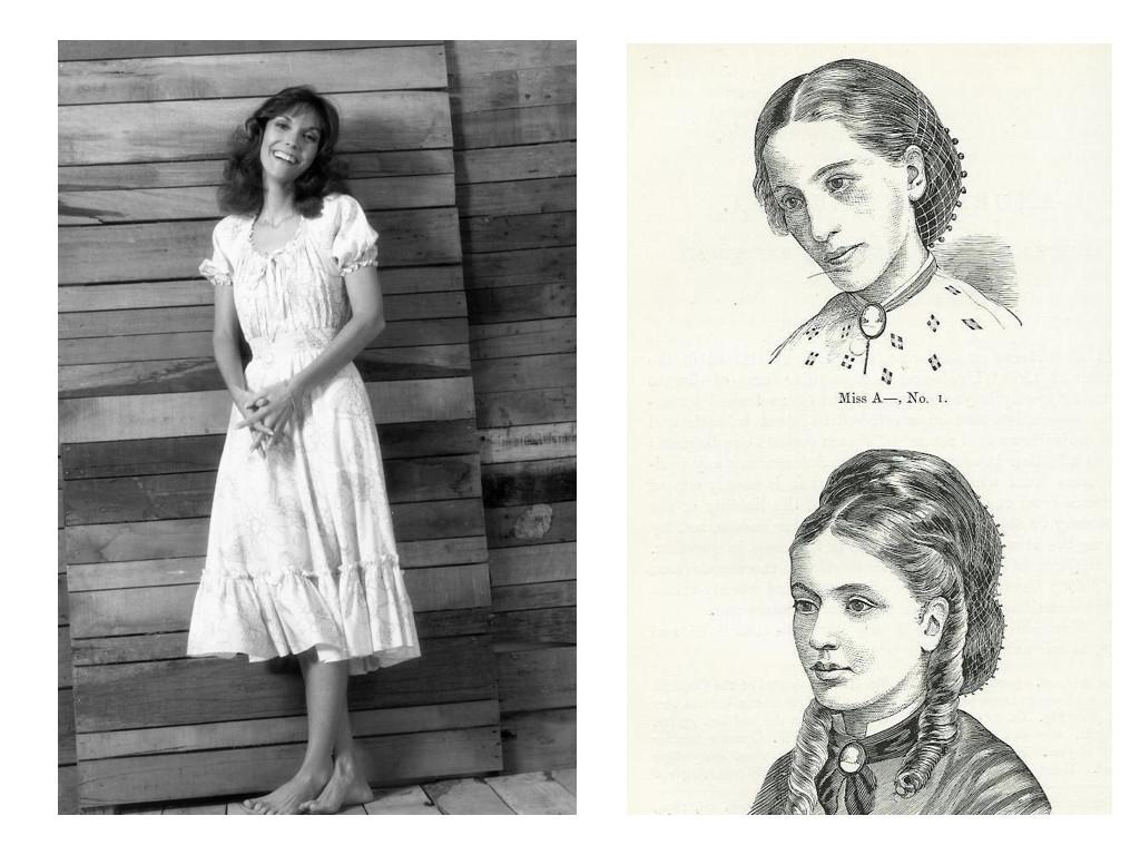 """Керън Карпентър – вокалистката на The Carpenters, умира от анорексия / """"Мис А."""", един от първите описани случаи на анорексия. Пациентката през 1866 и през 1870, след лечение. Илюстрации от медицинската документация на доктор Уилям Гъл, който измисля термина анорексия. Той е личен лекар на кралица Виктория и един от заподозрените за убийствата на Джак Изкормвача."""
