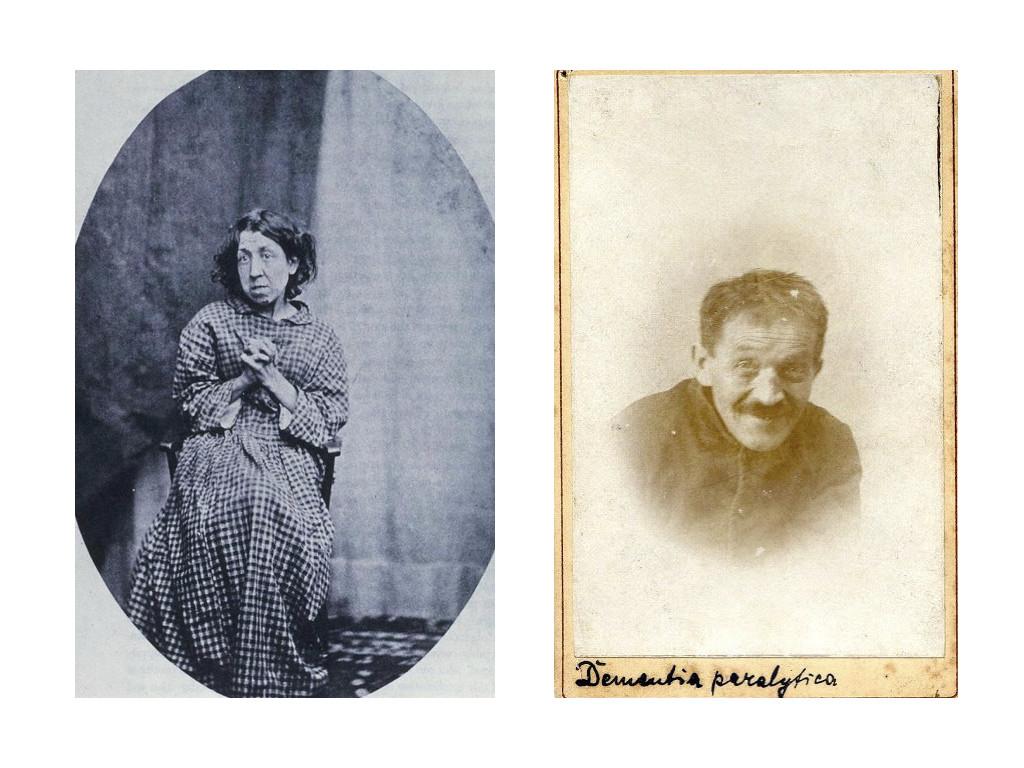 Жена със суицидна меланхолия, фотография на доктор Хю Уелч Даймънд (1809-1886) / Мъж с деменция паралитика